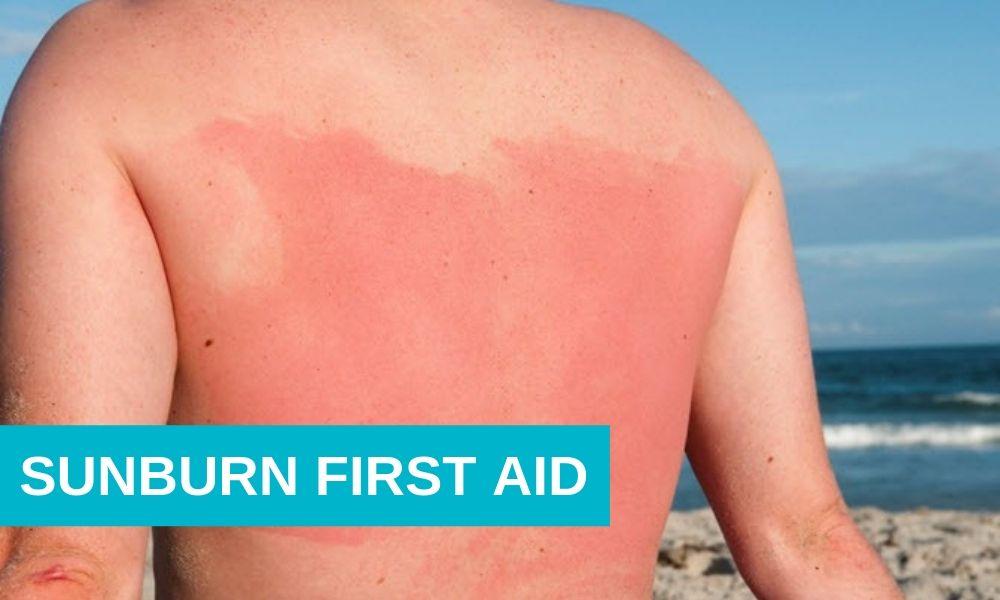 Sunburn First Aid