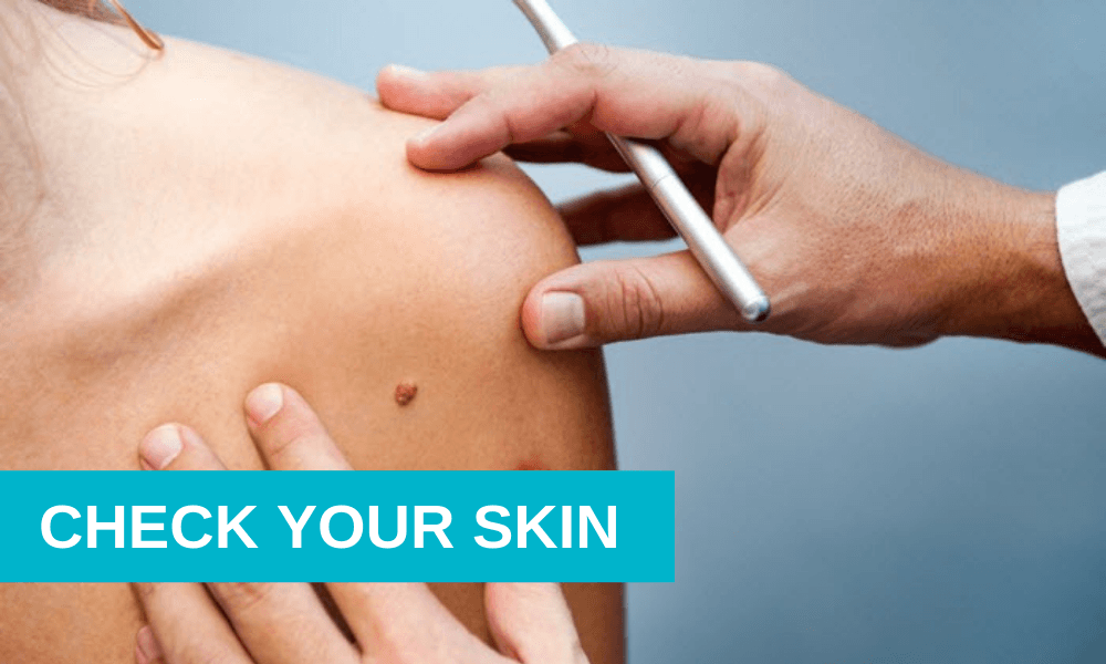 Check Your Skin